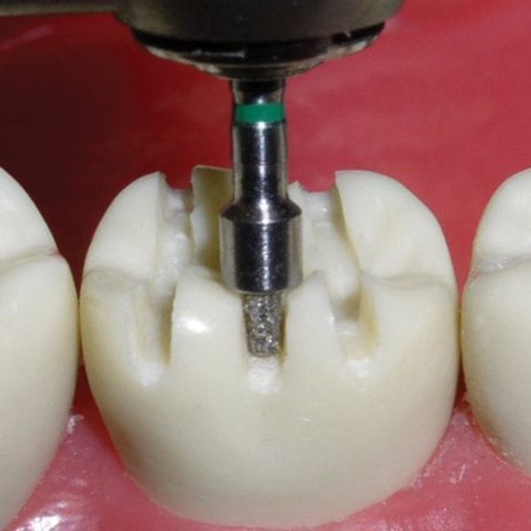 Occlusal Reduction - Strauss Diamond Instruments, Inc.