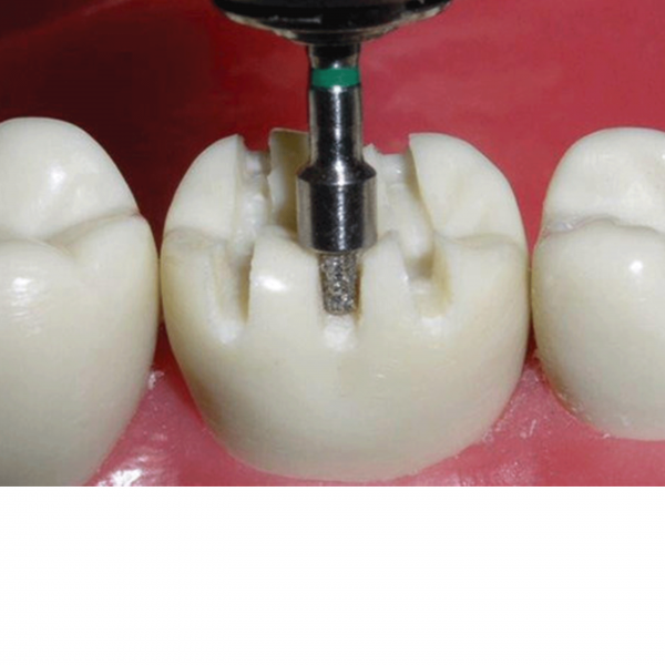 Occlusal Reduction